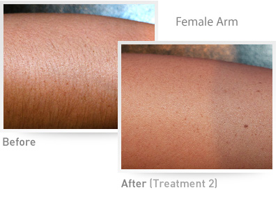 Female Arm IPL Results