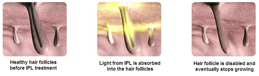 How IPL works