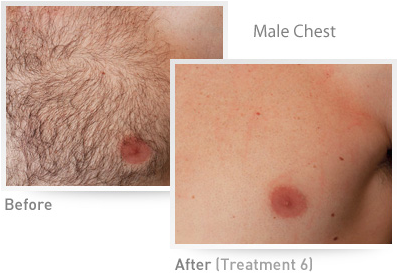 Male Chest IPL Results