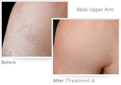 Male Upper Arm IPL Results