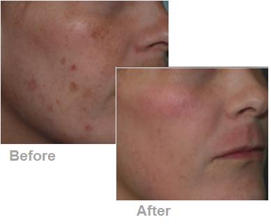 Good Facial Moisturizer For Acne Prone Skin